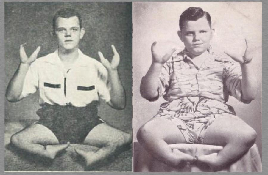 Grady, a homárkezű gyilkos, aki a fogyatékosságával élt vissza!
